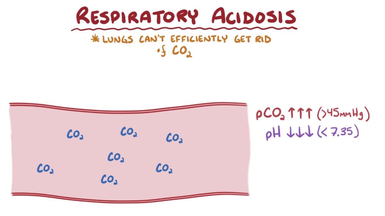hight resolution of overview of respiratory acidosis