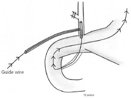 A modified Rendezvous ERCP technique in duodenal diverticulum