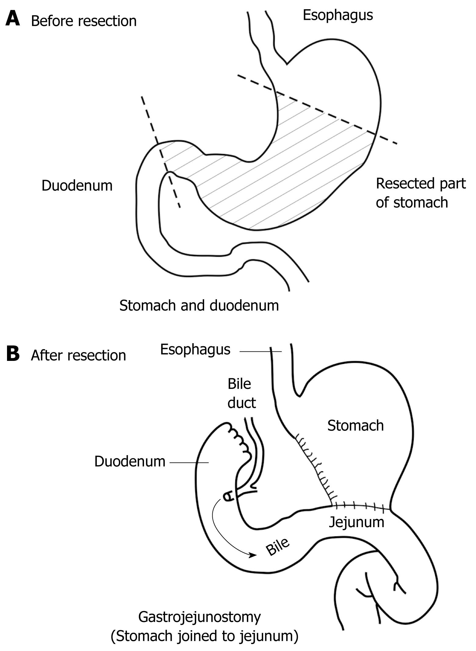 Computer Simulation Of Flow And Mixing At The Duodenal