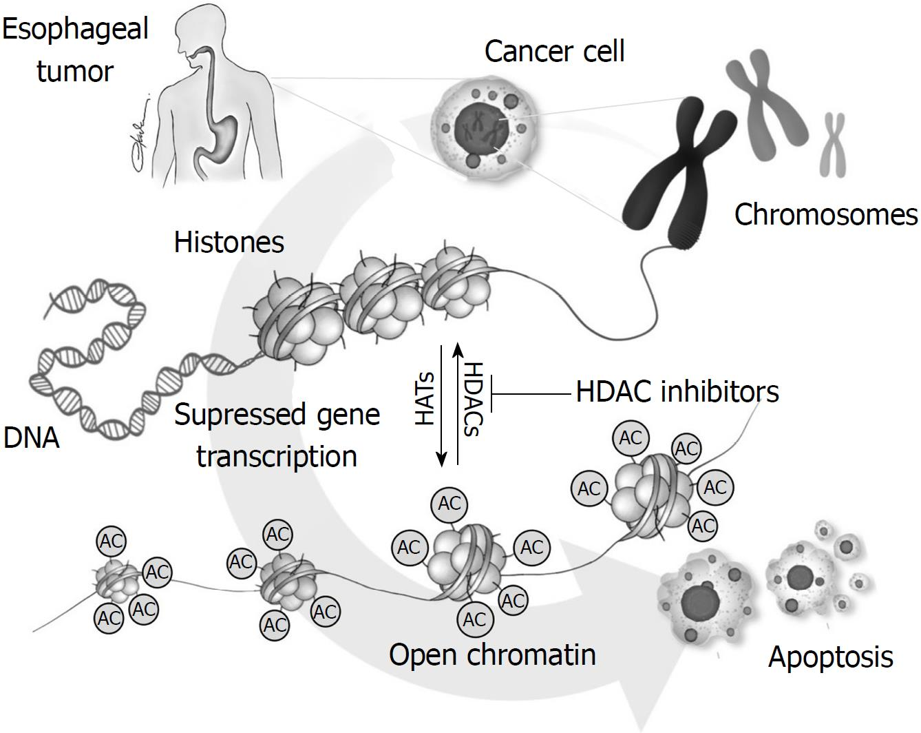 Concept of histone deacetylases in cancer: Reflections on