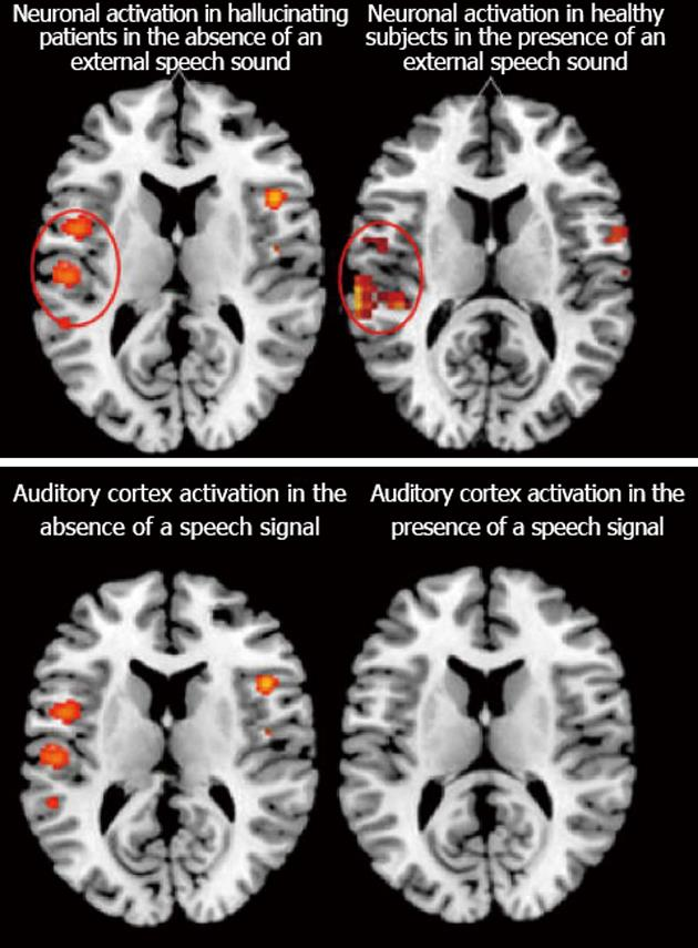 """Auditory hallucinations: A review of the ERC """"VOICE"""" project"""