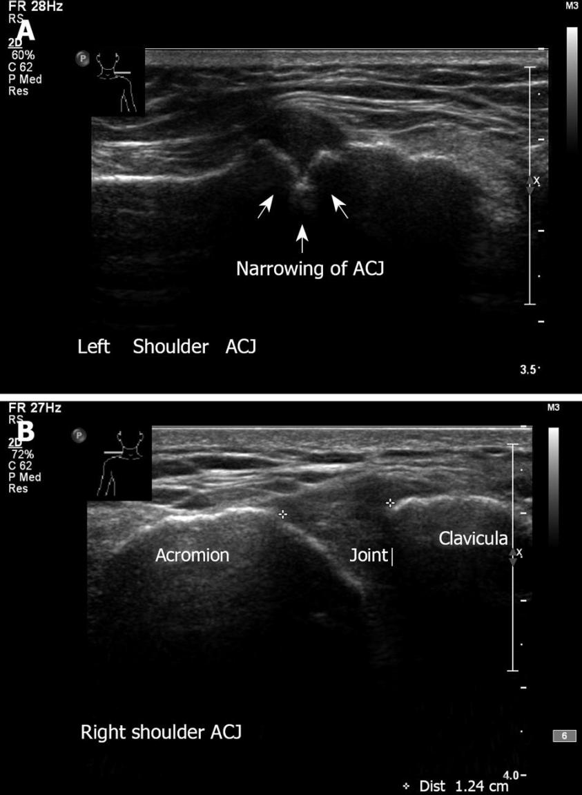 Ultrasound in the diagnosis of clinical orthopedics: The ...
