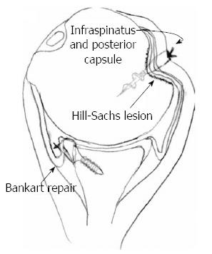 Effect of bone loss in anterior shoulder instability