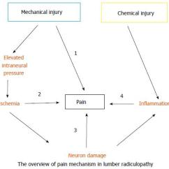 Lumbar Nerve Root Diagram 95 Mustang Gt Starter Wiring Radiculopathy And Its Neurobiological Basis Figure 2 The Overview Of Pain Mechanism In 1 Mechanical Ischemic 3 Neuropathic 4 Inflammatory