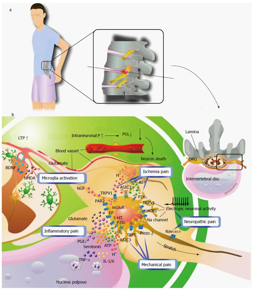lumbar nerve root diagram sun tach 2 wiring radiculopathy and its neurobiological basis figure 3 a hypothetical mechanism of