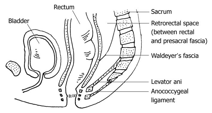 Posterior approach (Kraske procedure) for surgical