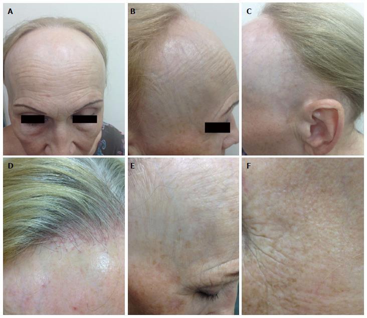 Frontal fibrosing alopecia update