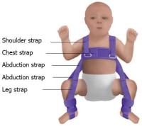 Developmental dysplasia of the hip in the newborn: A ...