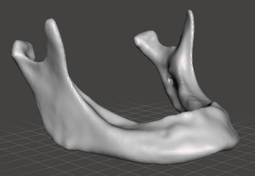 Visualización de un modelo tridimensional virtual de una mandíbula en formato STL
