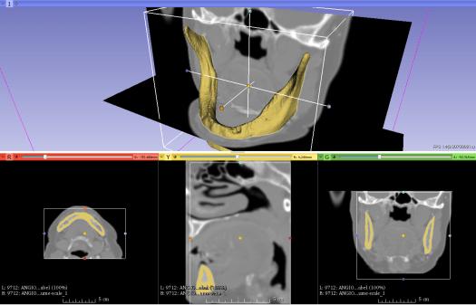 Visualización de la interfaz gráfica del programa computacional 3D Slicer.