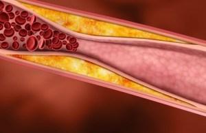 colesterol risco cardíaco