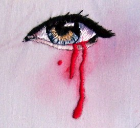 Bleeding eye