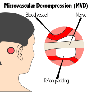Microvascular Decompression