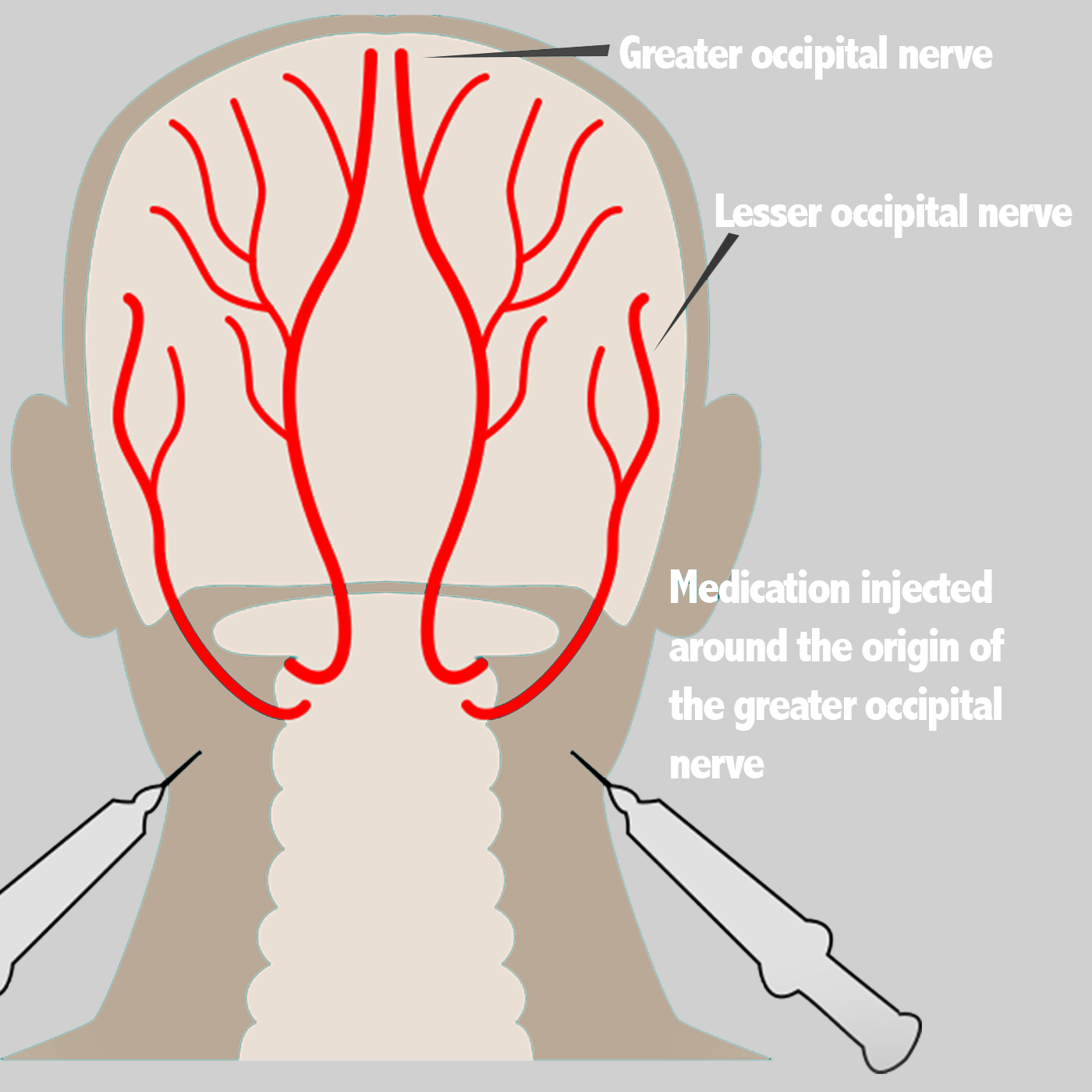 Nerve Blocks - Face Facts