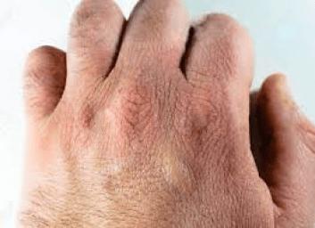 تشقق حساسية اليدين