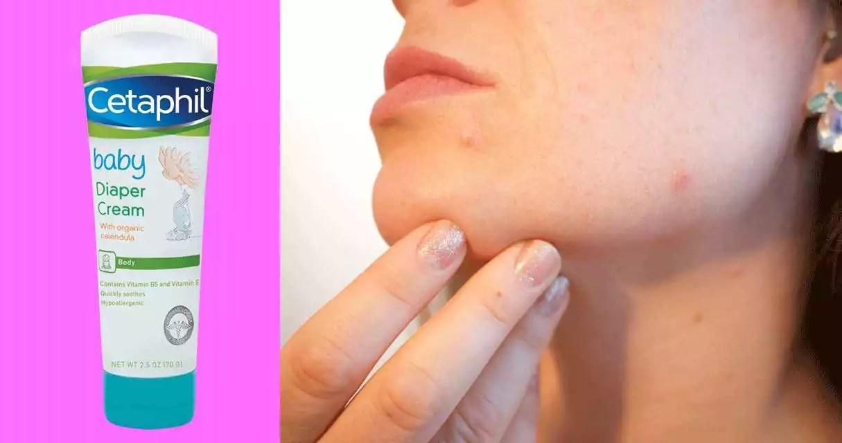diaper rash cream acne treament