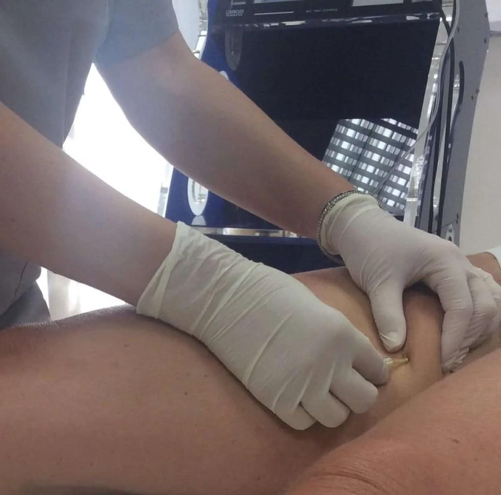 La Carbossiterapia