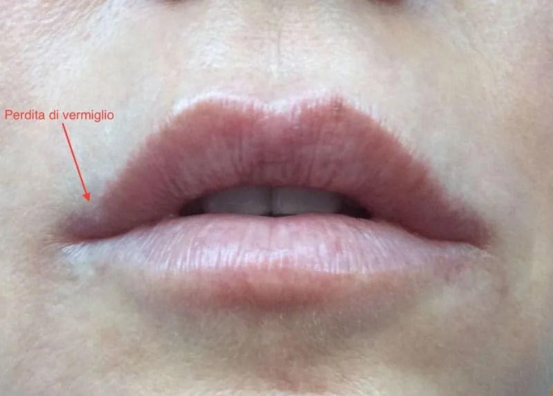 I trattamenti di medicina estetica per la bellezza delle labbra