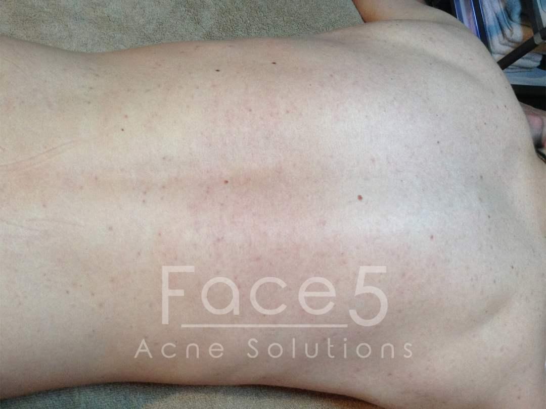 Inflamed Back Acne - After