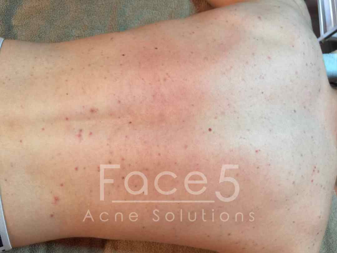 Inflamed Back Acne - Before