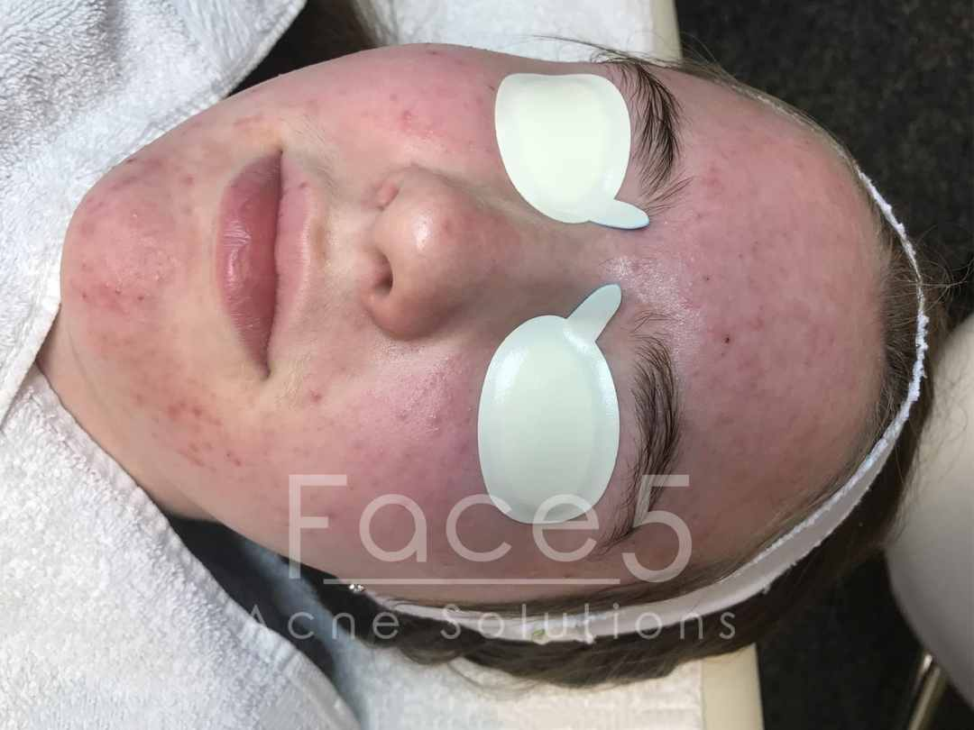 Combination Acne - Before