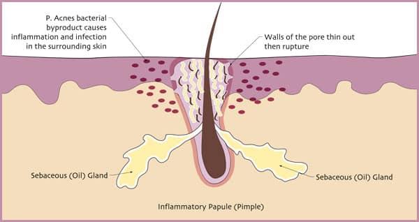 inflammatory-papule