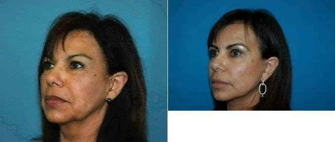 Doctor Glynn Bolitho. PhD. MD. FACS. San Diego Plastic Surgeon – And After » Facelift: Info. Prices. Photos. Reviews. Q&A
