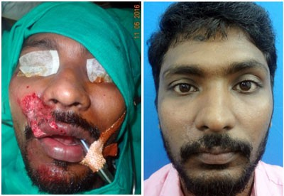 facial trauma treatment