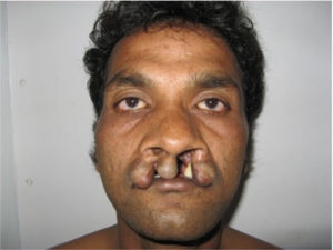 Cleft Palate Surgeon in India