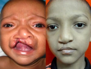 cleft lip and palate Before and After surgery