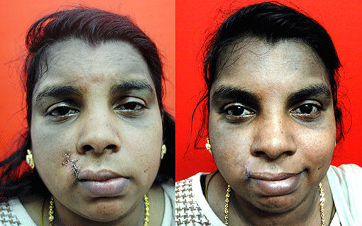 mouth and lip deformed surgeon in India