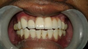 After Dental Rehabilitation Treatment in India