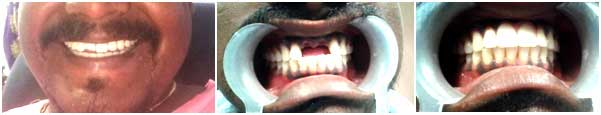 Missing tooth surgery in nagercoil