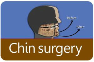 Chin Surgery in India