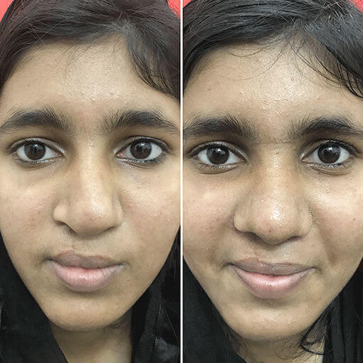 Cleft Rhinoplasty India
