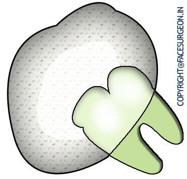 Dentigerous cyst