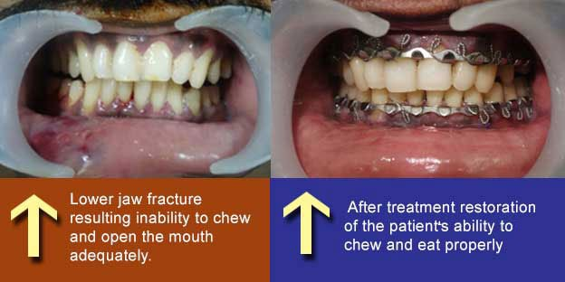 Mandibular Fractures Treatment in Tamil Nadu