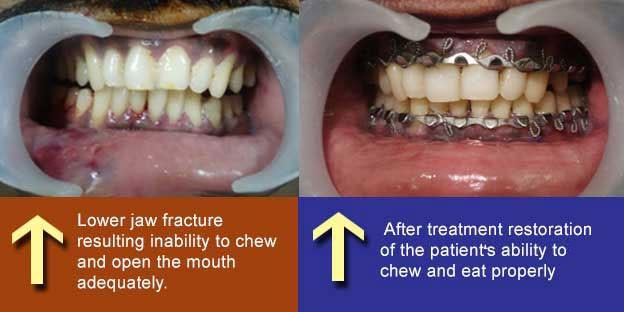 Mandibular Fractures Treatment in Tamil Nadu