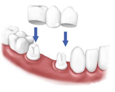 Missing Teeth treatment hospital in Nagercoil
