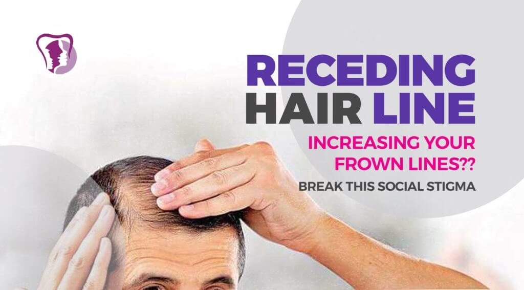 Receding hairline treatment in India