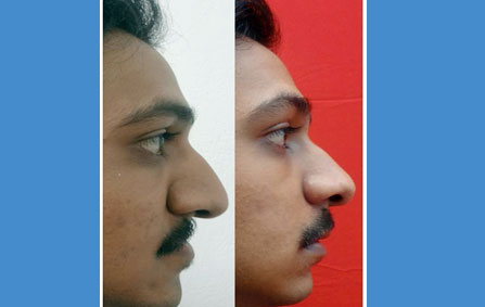 anterior maxillary distraction treatment in India