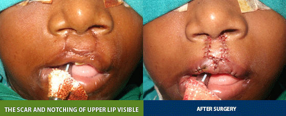 bilateral cleft lip correction surgery in India