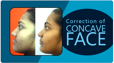 concave face correction treatment in India