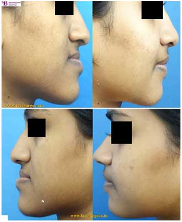corrective jaw surgery in India