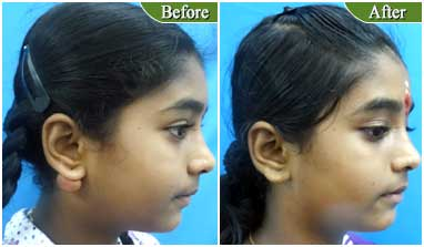 ear keloid treatment in India