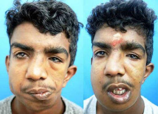 faciomaxillary surgery in India