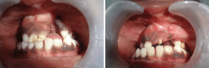 Alveolar Bone Grafting in Richardsons Hospital India