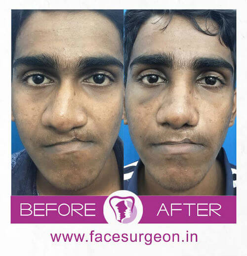 Before and After Images of Cleft Lip Surgery