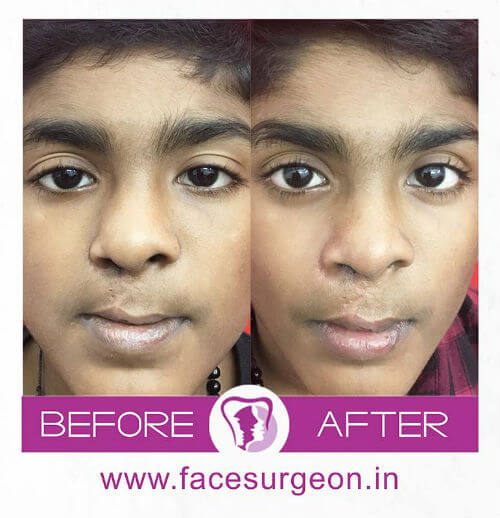 Cleft Lip Surgery Before and After Image