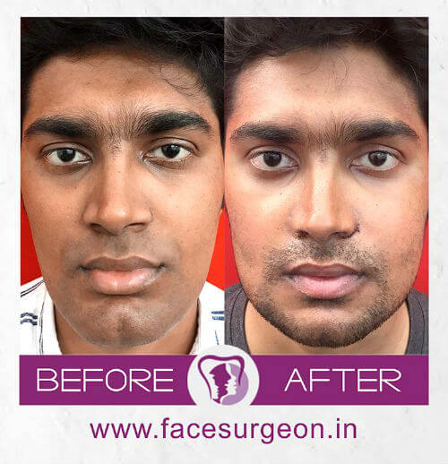 Facial Surgery Hospital in India